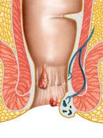 Schéma du rectum avec des hémorroïdes