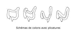 Schémas de colons plicatures