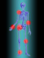 Tendinite: les localisations sur le squelette